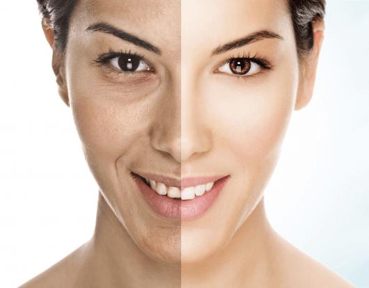 Mulher antes e depois do peeling