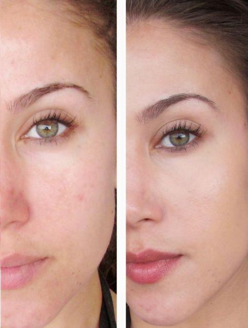 antes e depois da limpeza