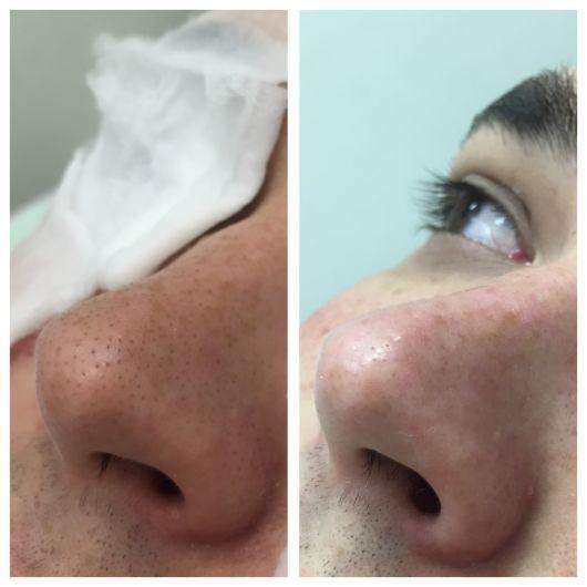 nariz antes peeling