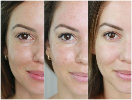 antes e depois do peeling