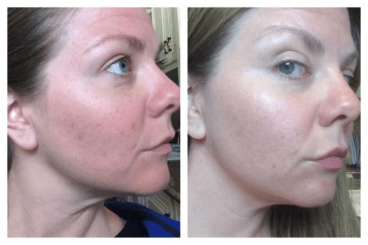 antes e depois do óleo de coco