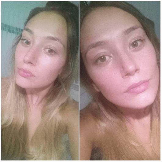 antes e depois da aplicação