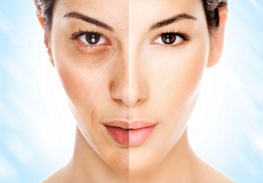 antes e depois do tratamento das rugas