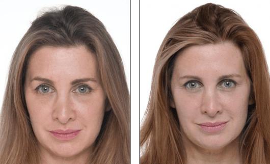 rugas antes e depois