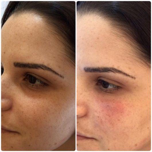 resultados com cicatricure para rugas