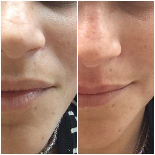 fotos antes e depois - cicatricure para envelhecimento precoce