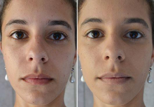 antes e depois - cicatricure para rugas