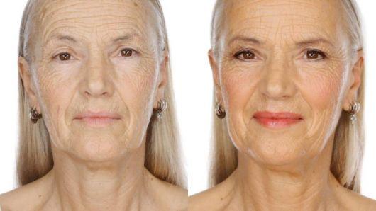 mulher idosa com rugas