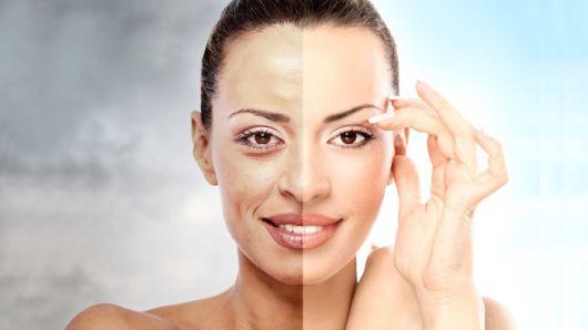 antes e depois das rugas tratadas