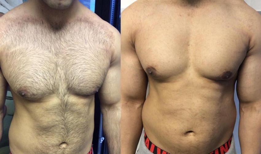 antes e depois da depilação do peito