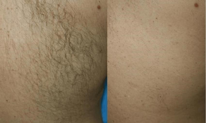 resultados da depilação por luz