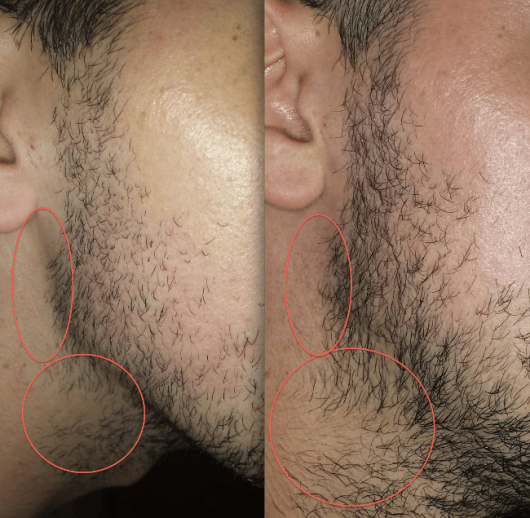 usos do minoxidil