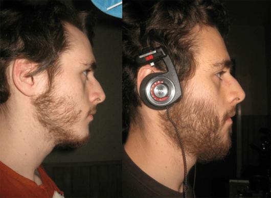 Antes e depois do uso