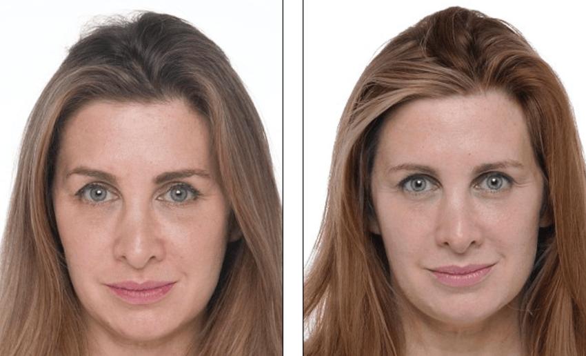 foto antes e depois