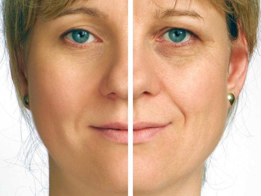 Fotos de tratamentos de pele antes e depois