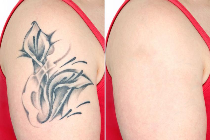 remoção de desenho no braço