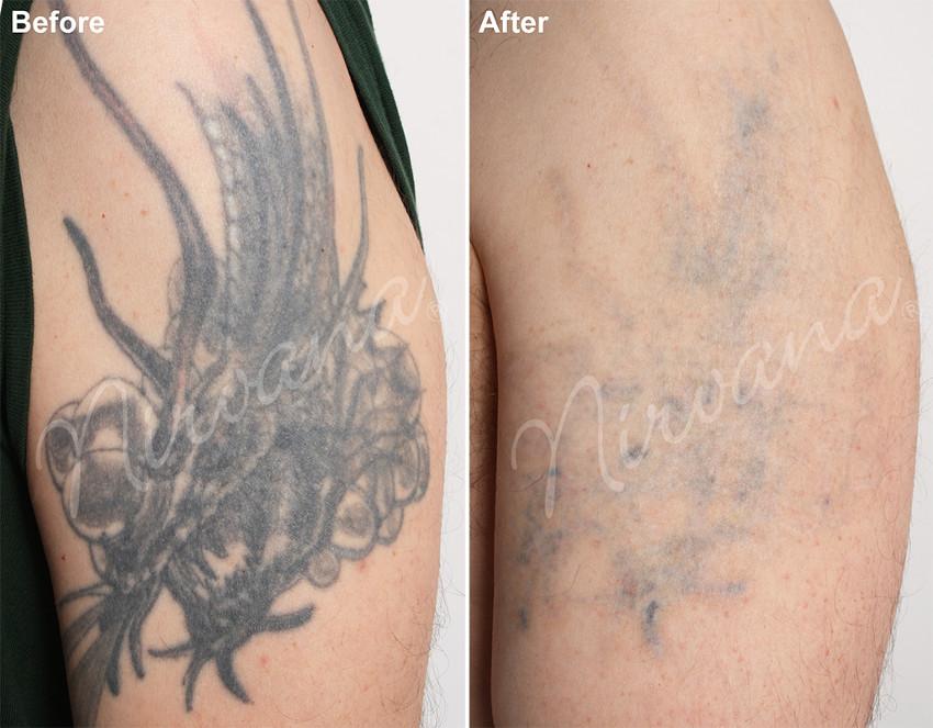 processo de remoção antes e depois
