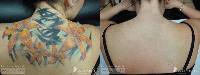 antes e depois de remover tatuagem