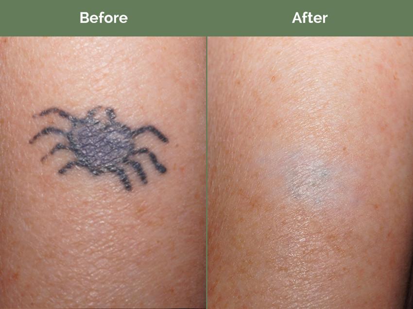 antes e depois da remoção