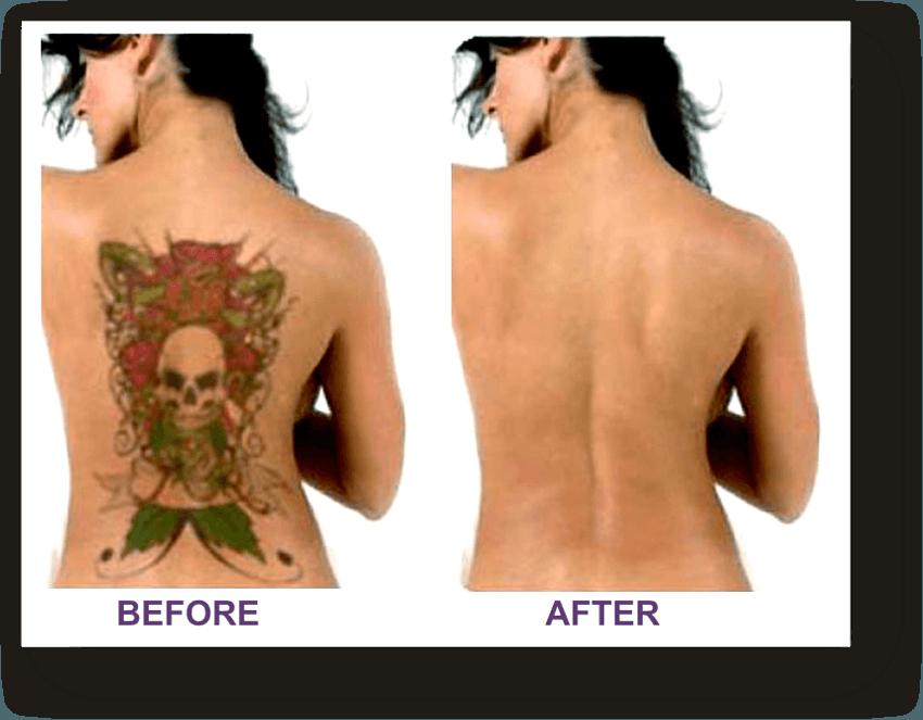 remoção antes e depois