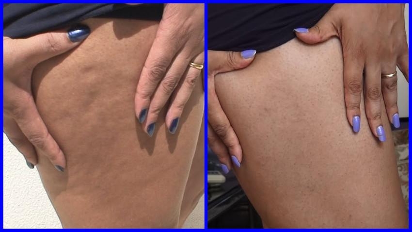 perna antes e depois