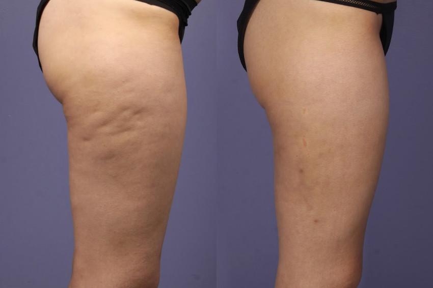 perna com celulite antes e depois