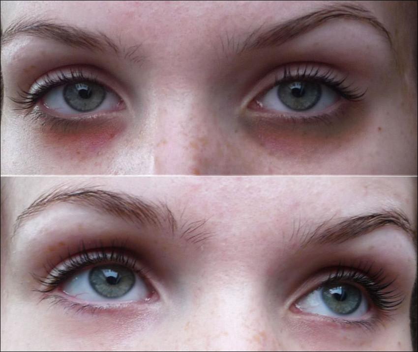 antes e depois olheiras