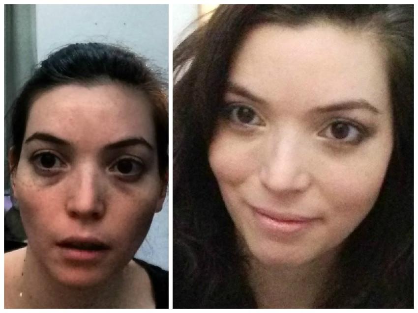resultados do tratamento para olheiras