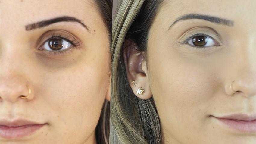 antes e depois das olheiras