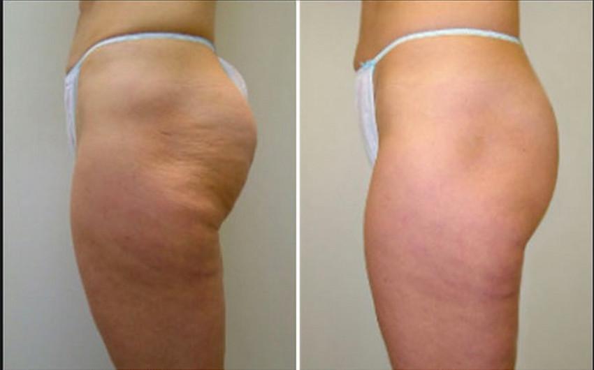 popô antes e depois do tratamento