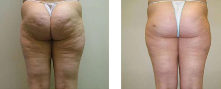 bumbum antes e depois do tratamento