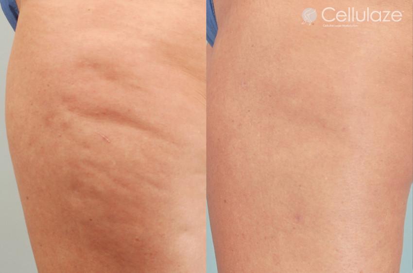 coxas de mulher antes e depois