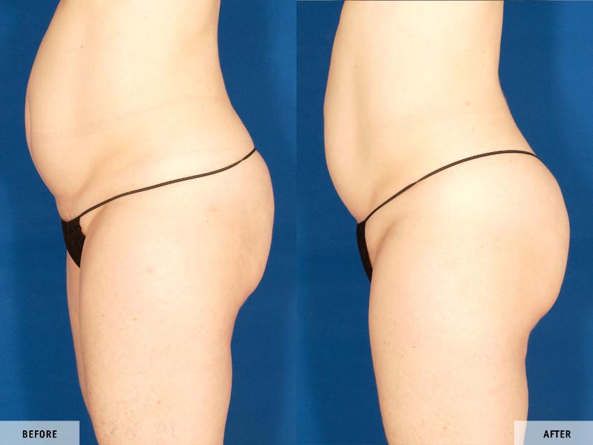 barriga antes e depois do tratamento