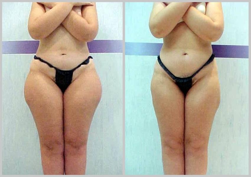 antes e depois do tratamento