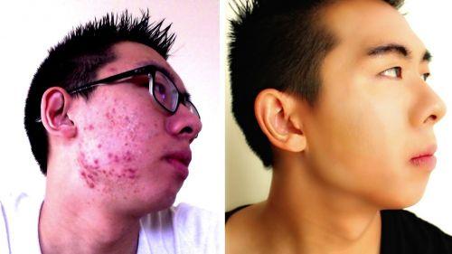 Maquiagem masculina para rosto cheio de espinhas
