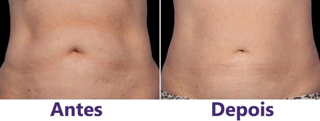 resultados antes e depois