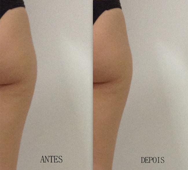 imagens antes e depois