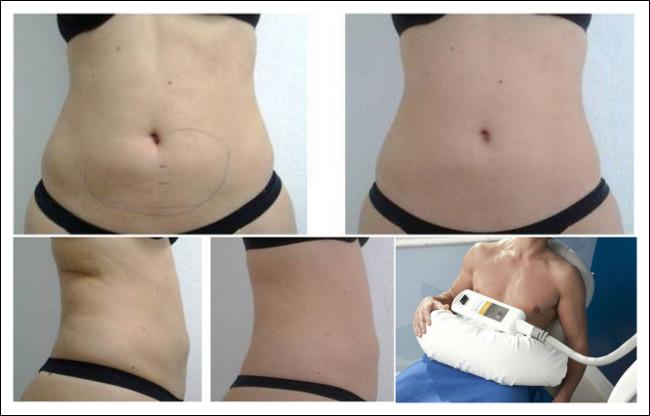 resultados antes e depois do procedimento criolipólise
