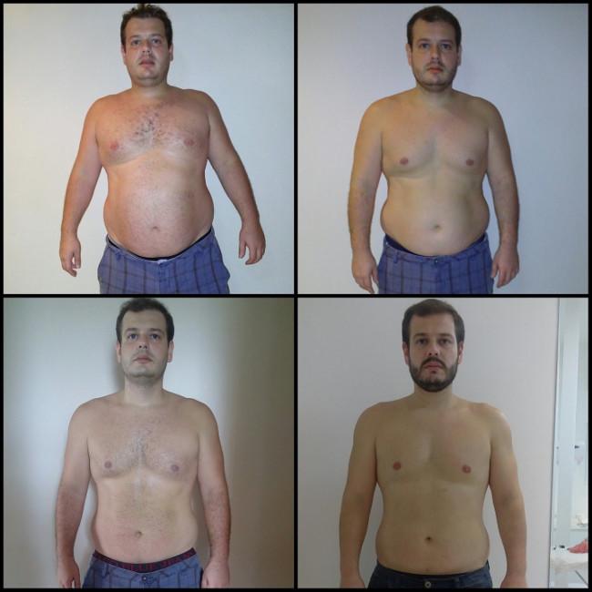 resultados antes e depois do procedimento
