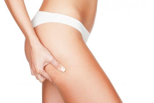 mulher com celulites na perna