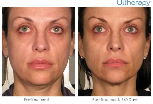 Imagem antes e depois do tratamento de bigode chinês