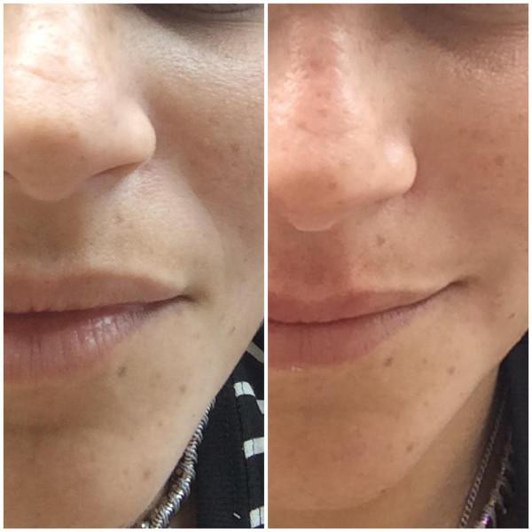 Resultados do tratamento para bigode chinês