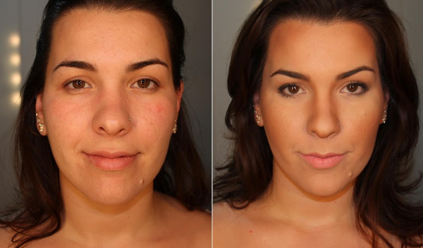 Imagens antes e depois do preenchimento facial