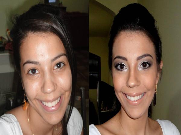 Mulher antes e depois do tratamento para bigode chinês