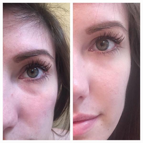 Mulher bonita antes e depois de preenchimento de bigode chinês