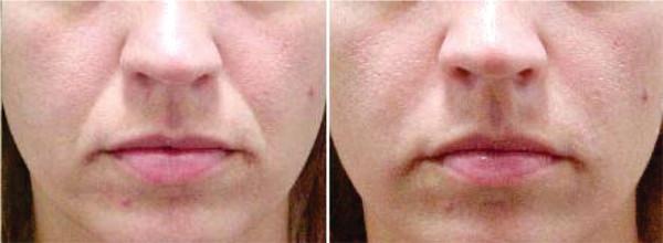 Processo de preenchimento de bigode antes e depois