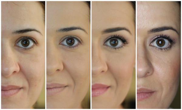 Imagens antes e depois de preenchimento para bigode chinês