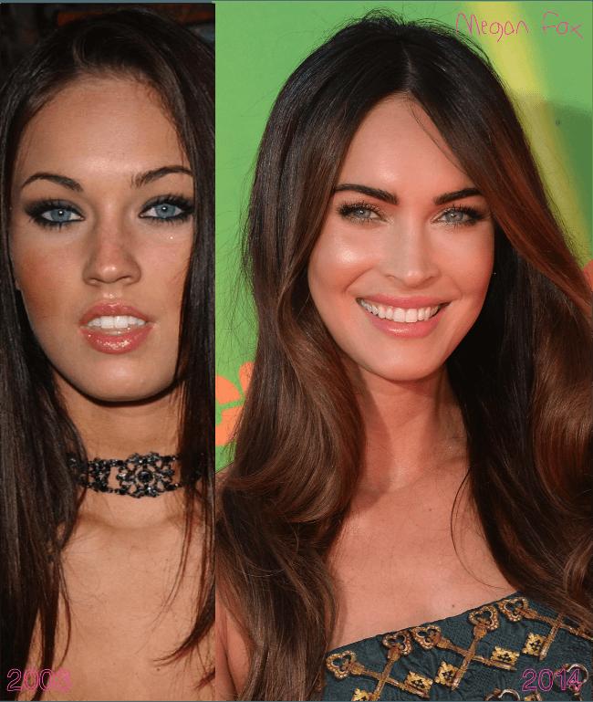 Aumento labial antes e depois