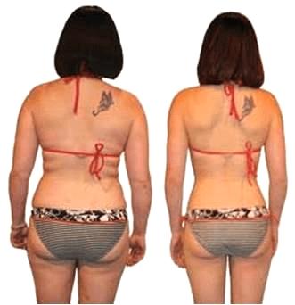 Lipocavitação nos flancos antes e depois