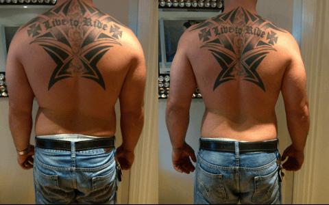 Lipocavitação masculibna - fotos antes e depois